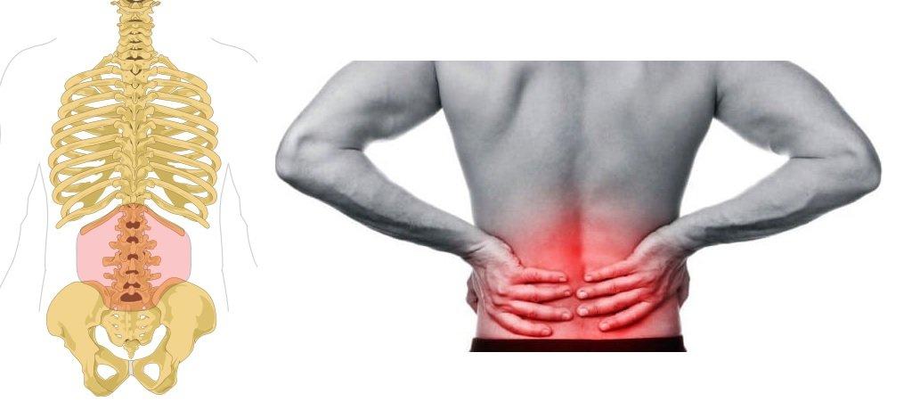 tratamiento osteopatico en dolor lumbar